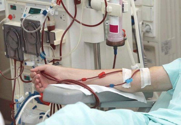 در استان یزد ۶۰۰ بیمار دیالیزی وجود دارد
